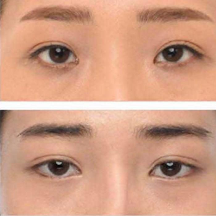 韩国珠儿丽整形医院眼部整形案例介绍分析—珠儿丽整形外科整形案例