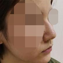 分享一组兰州韩美整形医院隆鼻手术真人案例!_韩国整形真实案例日记