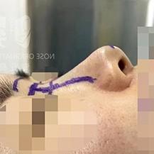 南京鼻祖医院鼻综合整形手术真人案例!_韩国整形真实案例日记