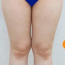 韩国Dr.creamy整形医院大腿及小腿吸脂真人案例分享_韩国整形真实案例日记