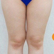 韩国Dr.creamy整形医院大腿及小腿吸脂真人案例分享—韩国Dr.creamy整形医院整形案例