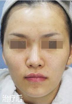 韩国BLS整形外科医院的祛色素案例对比_韩国整形真实案例日记