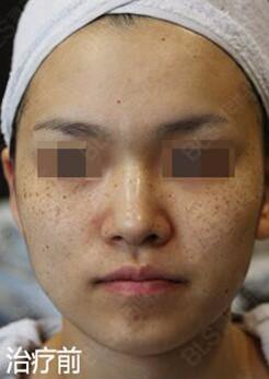 韩国BLS整形外科医院的祛色素案例对比—韩国BLS整形外科医院整形案例
