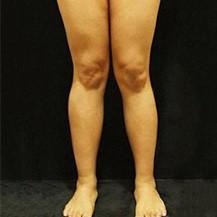 韩国JS美整形外科医院腿型矫正真人案例—韩国JS美整形外科医院整形案例