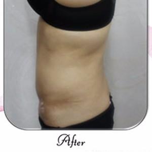 韩国Qline女性医院做的侧面腰腹部吸脂案例。_韩国整形真实案例日记