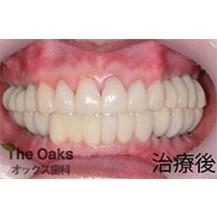 韩国橡树牙科医院种植牙案例—韩国橡树牙科医院整形案例