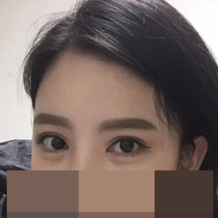 朴圣勋院长的眼部修复案例—韩国可来熙整形外科医院整形案例