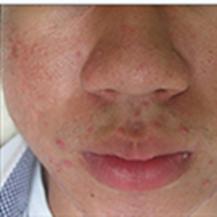 韩国verygood皮肤科医院皮肤改善真人案例对比—韩国verygood皮肤科医院整形案例