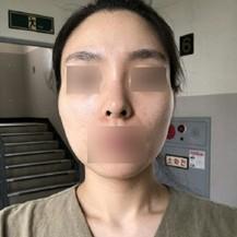韩国美迪莹整形外科医院颧骨缩小术—韩国美迪莹整形外科