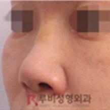 韩国RUBY如妃整形外科医院隆鼻修复手术_韩国整形真实案例日记