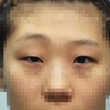 韩国珠儿丽整形外科医院大小眼矫正案例—韩国珠儿丽整形外科医院